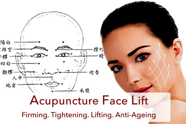 Acupuncture Face Lift @ Wonder Life Clinic - Wonder Life ...